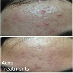 Acne Treatments MBB salon